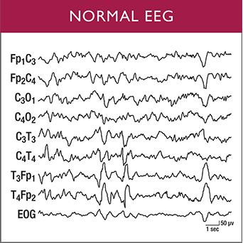 img-eeg-normal