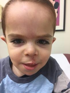 Close up at his check up.